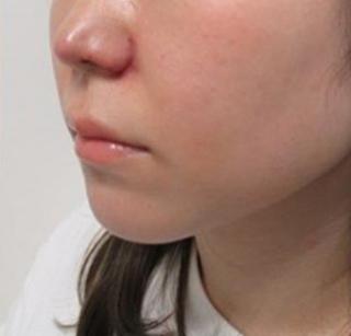 銀座TAクリニックの鼻翼挙上術+鼻孔縁挙上術+鼻尖形成+鼻翼縮小(外側法)+4Dノーズの症例写真(アフター)