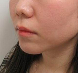 銀座TAクリニックの鼻翼挙上術+鼻孔縁挙上術+鼻尖形成+鼻翼縮小(外側法)+4Dノーズの症例写真(ビフォー)