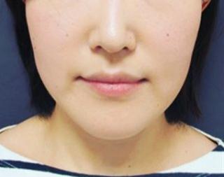銀座TAクリニックのキツネシルエット・ハートライン(TAC式ツヤ肌コラーゲンリフト®+TAC式ショッピングリフトorヒアルロン酸注射(ホホ)+ボツリヌストキシン(エラ)+ヒアルロン酸注射(アゴ))の症例写真(ビフォー)