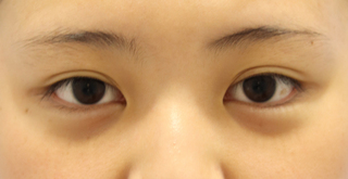 東京イセアクリニック銀座院の【セットプランで10%OFF】全切開法+たれ目形成 の症例写真(ビフォー)
