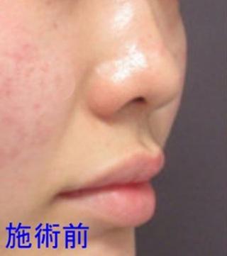 銀座TAクリニックの鼻尖縮小術、鼻尖4Dノーズの症例写真(ビフォー)