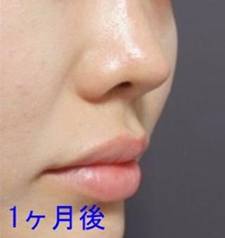 銀座TAクリニックの鼻尖縮小術、鼻尖4Dノーズの症例写真(アフター)