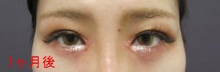 銀座TAクリニックの目頭切開術の症例写真(アフター)