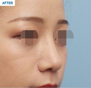 マーブル整形外科の鼻整形の症例写真(アフター)
