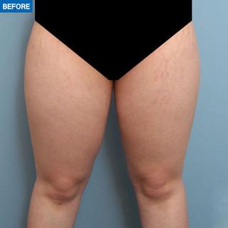 マーブル整形外科の太もも脂肪吸引の症例写真(ビフォー)