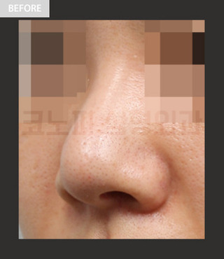 CONOPI (コノピ)整形外科の鼻再手術(団子鼻&短い鼻)の症例写真(ビフォー)