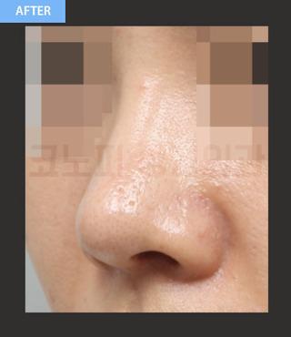 CONOPI (コノピ)整形外科の鼻再手術(団子鼻&短い鼻)の症例写真(アフター)