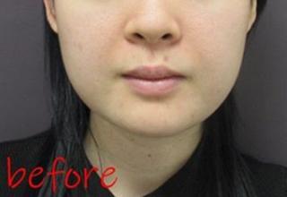 銀座TAクリニックのキツネライン(ダイヤプラン)、鼻尖4Dノーズ+鼻尖縮小術(内側法)+鼻孔縁挙上術+鼻翼縮小術(外側法)の症例写真(ビフォー)