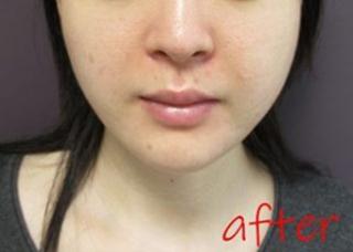 銀座TAクリニックのキツネライン(ダイヤプラン)、鼻尖4Dノーズ+鼻尖縮小術(内側法)+鼻孔縁挙上術+鼻翼縮小術(外側法)の症例写真(アフター)