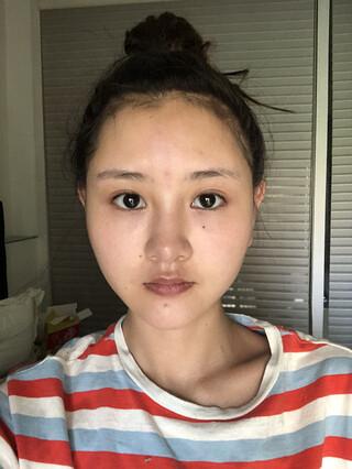 アイウェル整形外科の輪郭手術+脂肪移植+唇フィラー+アキュ(顎下)+目尻切開の症例写真(ビフォー)