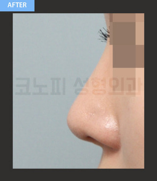 CONOPI (コノピ)整形外科の団子鼻整形(鷲鼻+骨切り)の症例写真(アフター)