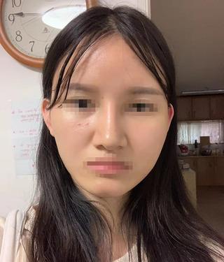 アイウェル整形外科の輪郭3種、小鼻縮小の症例写真(ビフォー)