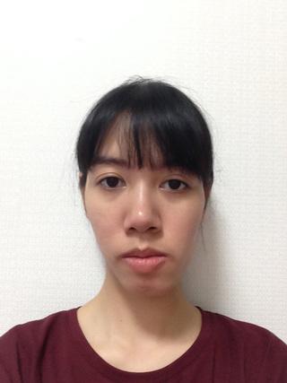 グランド整形外科の両顎手術、頬骨縮小術、長い顎縮小術、脂肪移植術、鼻筋+鼻先 の症例写真(ビフォー)
