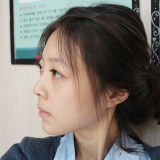 グランド整形外科の鼻筋+鼻先、短い鼻矯正、 脂肪移植(額、前頬、ほうれい線)の症例写真(ビフォー)
