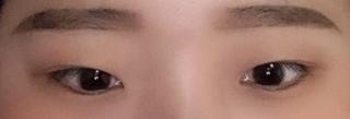 アイウェル整形外科の自然癒着、目元矯正の症例写真(ビフォー)