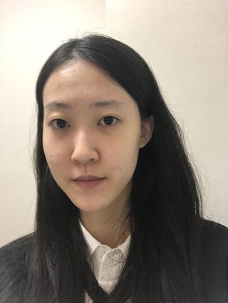 TL美容整形外科 顔面輪郭・目・鼻センターの輪郭2点(3D頬骨縮小再手術、前顎V字骨切り),鼻中隔,非切開目つき矯正の症例写真(ビフォー)
