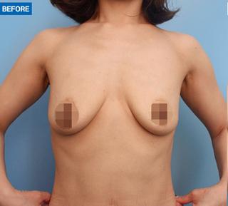 マーブル整形外科のシリコンバッグ豊胸の症例写真(ビフォー)