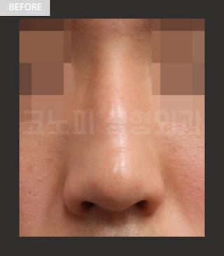 CONOPI (コノピ)整形外科の男性鼻整形(曲がった鼻+ワシ鼻)の症例写真(ビフォー)