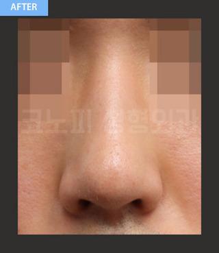 CONOPI (コノピ)整形外科の男性鼻整形(曲がった鼻+ワシ鼻)の症例写真(アフター)