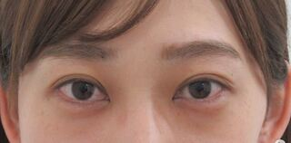 銀座TAクリニックのグラマラスライン+目尻靭帯移動術の症例写真(ビフォー)