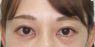 銀座TAクリニックのグラマラスライン+目尻靭帯移動術の症例写真(アフター)
