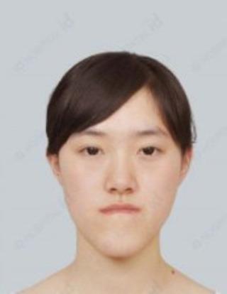 id美容外科の両顎手術の症例写真(ビフォー)