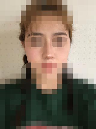 加美(GAMI)整形外科の鼻の手術の症例写真(アフター)