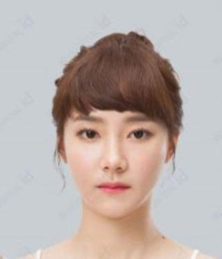 id美容外科の両顎手術の症例写真(アフター)