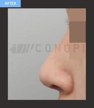 CONOPI (コノピ)整形外科の矢印鼻整形(団子鼻+無プロテーゼ)の症例写真(アフター)