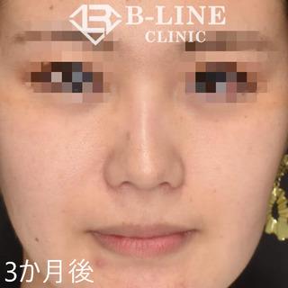 B-LINE CLINICの小鼻縮小術+BL式鼻尖形成術+鼻ヒアルロン酸注入 3ヶ月後の症例写真(アフター)