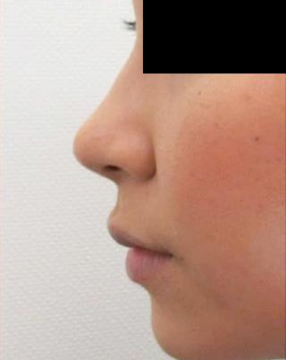 高崎TAクリニックアソシエの鼻尖縮小+鼻尖4Dノーズの症例写真(アフター)
