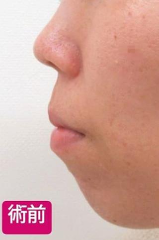 高崎TAクリニックアソシエの下顎プロテーゼ+鼻尖4Dノーズの症例写真(ビフォー)