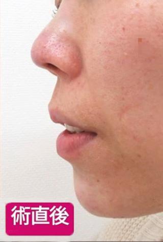 高崎TAクリニックアソシエの下顎プロテーゼ+鼻尖4Dノーズの症例写真(アフター)