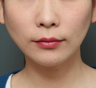 オザキクリニックLUXE新宿の人中短縮(リップリフト)+口角挙上(スマイルリップ)の症例写真(ビフォー)