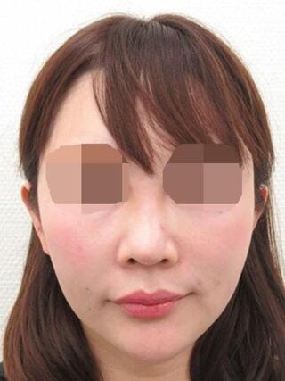 銀座TAクリニックのTAC式ツヤ肌コラーゲンリフト・ジョールファット除去・TAC式鼻翼縮小術(内側法)の症例写真(ビフォー)