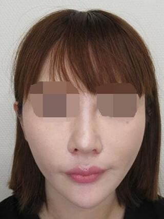 銀座TAクリニックのTAC式ツヤ肌コラーゲンリフト・ジョールファット除去・TAC式鼻翼縮小術(内側法)の症例写真(アフター)