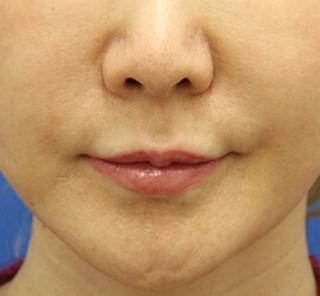 オザキクリニックLUXE新宿の人中短縮(リップリフト)+口角拳上(スマイルリップ)の症例写真(ビフォー)