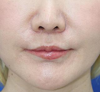 オザキクリニックLUXE新宿の人中短縮(リップリフト)+口角拳上(スマイルリップ)の症例写真(アフター)