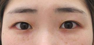 大阪TAクリニックの埋没4点留め+目頭切開術+クマ治療(下眼瞼脱脂術)の症例写真(ビフォー)
