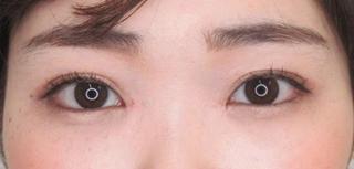 大阪TAクリニックの埋没4点留め+目頭切開術+クマ治療(下眼瞼脱脂術)の症例写真(アフター)