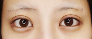 大阪TAクリニックのグラマラスライン(切開法)の症例写真(ビフォー)