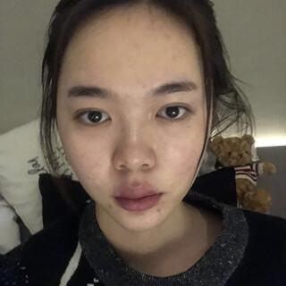 アイウェル整形外科の頬骨、エラ削り、脂肪移植の症例写真(ビフォー)