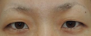 銀座S美容・形成外科クリニックの二重全切開の症例写真(ビフォー)