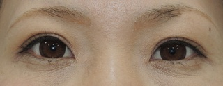 銀座S美容・形成外科クリニックの二重全切開の症例写真(アフター)