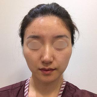 アイウェル整形外科の輪郭3種、鼻整形、脂肪移植の症例写真(ビフォー)