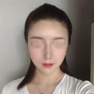 アイウェル整形外科の輪郭3種、鼻整形、脂肪移植の症例写真(アフター)