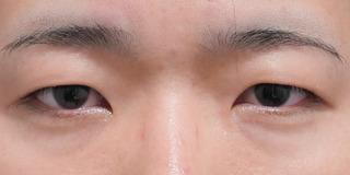 東京イセアクリニック銀座院の埋没法ダブルの症例写真(ビフォー)