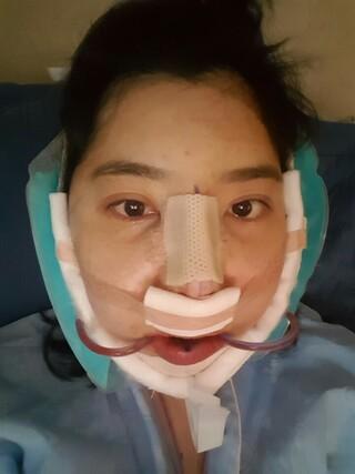 TL美容整形外科 顔面輪郭・目・鼻センターの3D頬骨縮小術、長曲線エラ縮小術、前顎V字骨切り, 鼻再手術の症例写真(ビフォー)