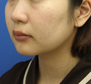 オザキクリニックLUXE新宿の顔の脂肪吸引(頬・あご下+メーラーファット+バッカルファット)の症例写真(ビフォー)