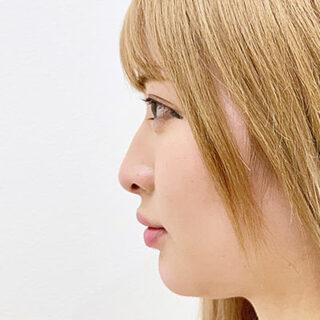 A CLINIC(エークリニック)銀座院の【切らない鼻先隆鼻術】A式鼻先シャープ術の症例写真(ビフォー)